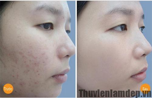 Làm trắng da và trị mụn hiệu quả sau 2 tuần nhờ công thức sữa nghệ
